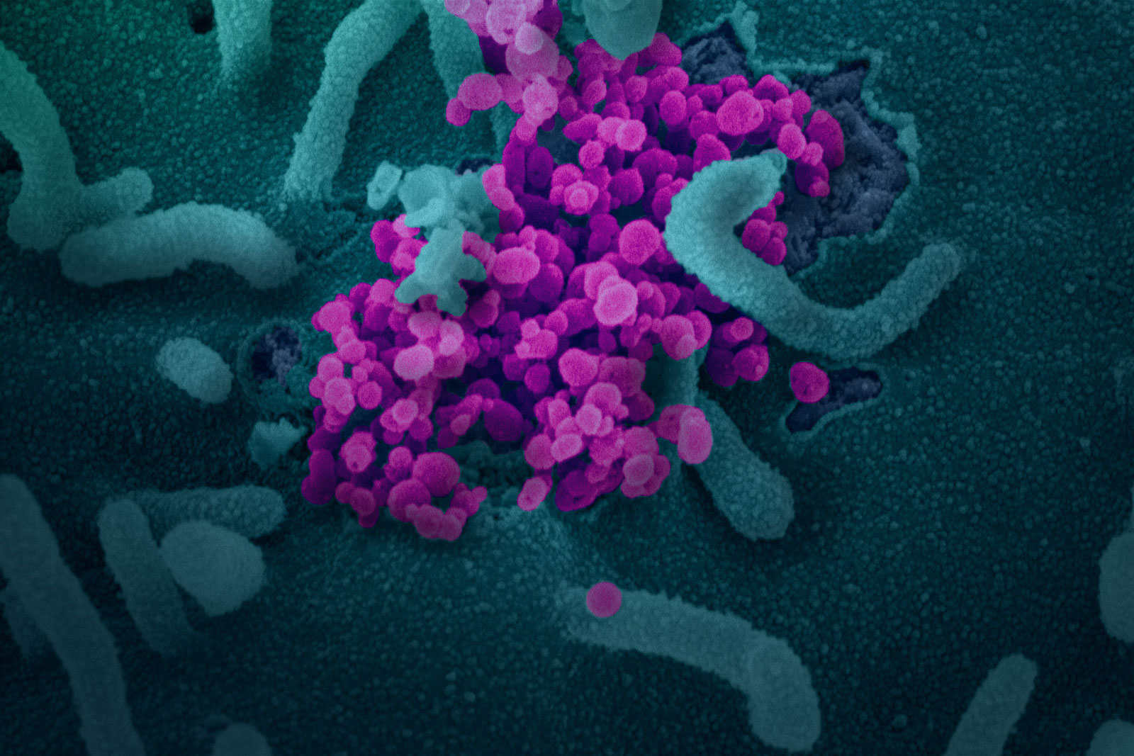 This scanning electron microscope image shows SARS-CoV-2, isolated from a patient in the U.S., emerging from the surface of cells cultured in the lab. Credit: NIAID-RML