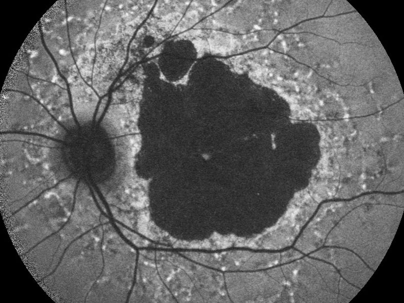 Autofluorescence imaging of an inherited macular dystrophy. Photo by the Nuffield Department of Clinical Neurosciences